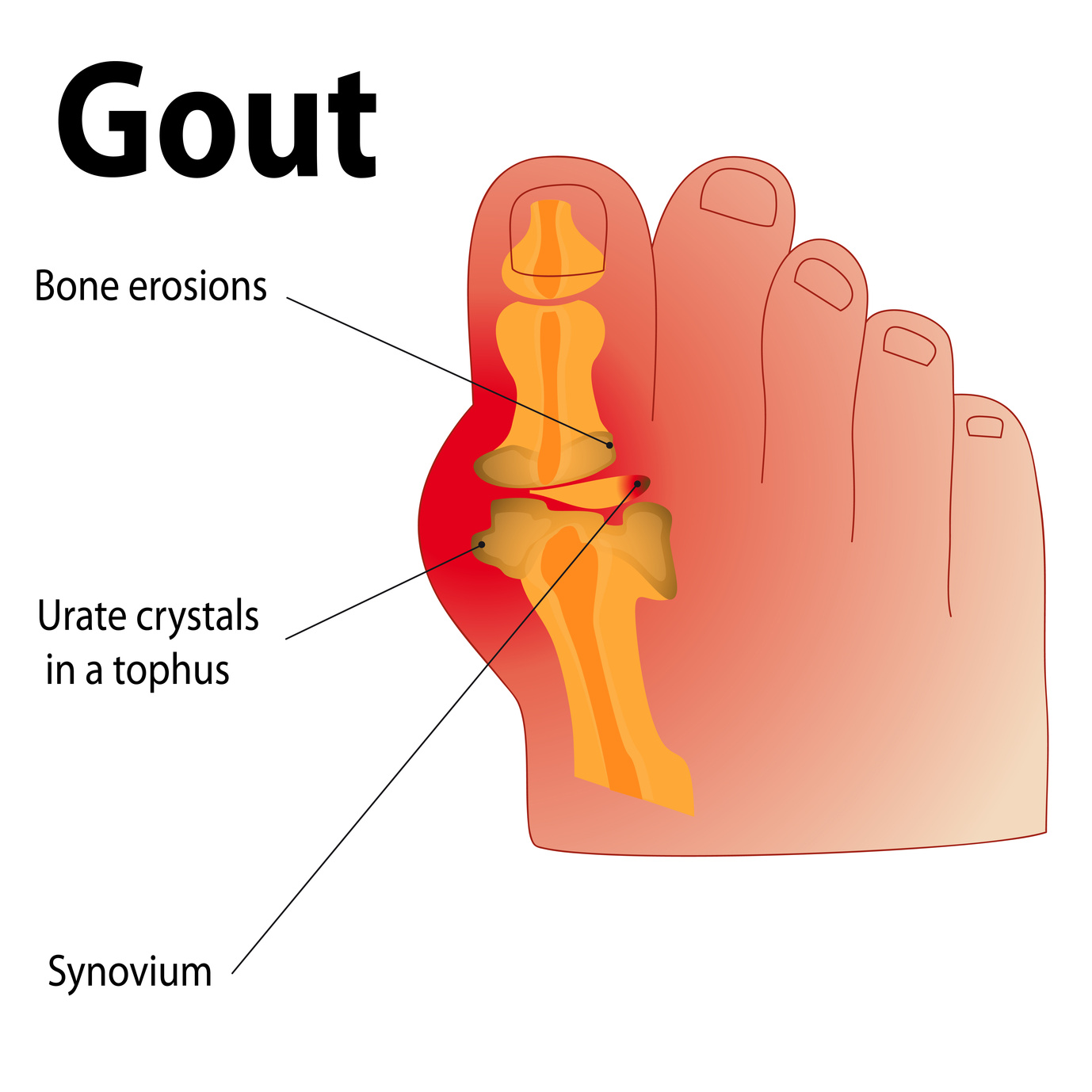 high uric acid specialist elevated uric acid levels and gout difference between gouty arthritis and rheumatoid arthritis